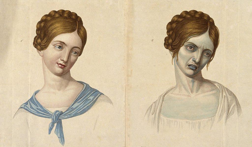 Ofiara cholery przed i po zarażeniu (domena publiczna).