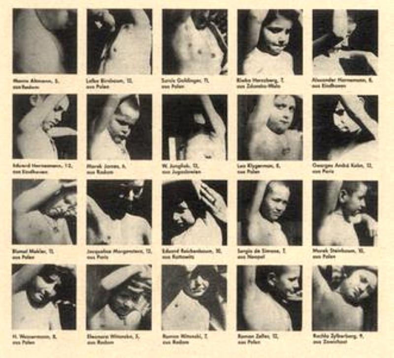 Dzieci, na których eksperymentował Kurt Heissmeyer, zakażajac je gruźlicą (fot. domena publiczna).