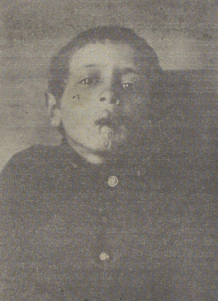 Chłopiec chory na kiłę wrodzoną (domena publiczna).