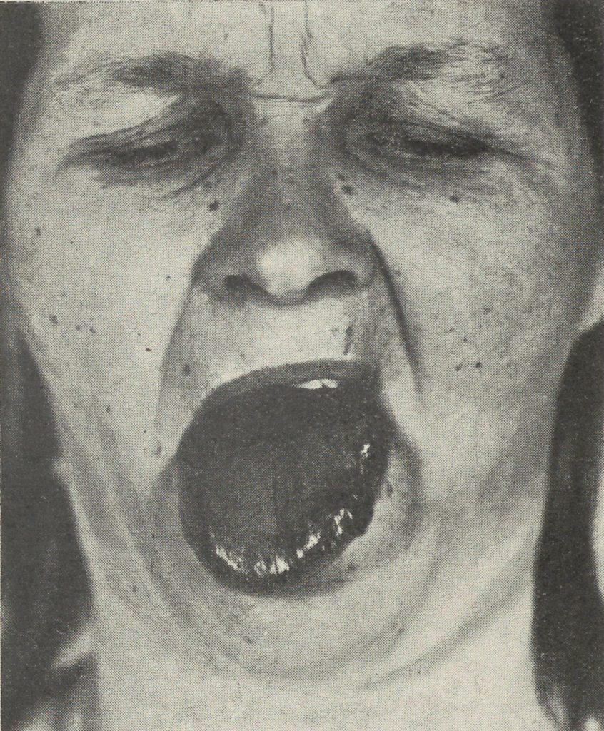 Kobieta chora na syfilis z krwawym wylewem na błonie śluzowej języka (domena publiczna).