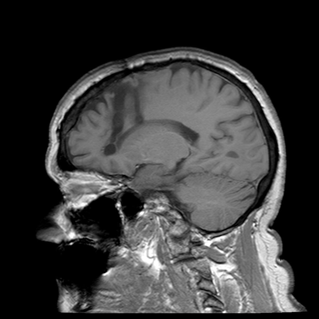 Rezonans magnetyczny czaszki pacjenta u którego wykonano kilkadziesiąt lat wcześniej lobotomię (Frank Gaillard/CC BY-SA 3.0).