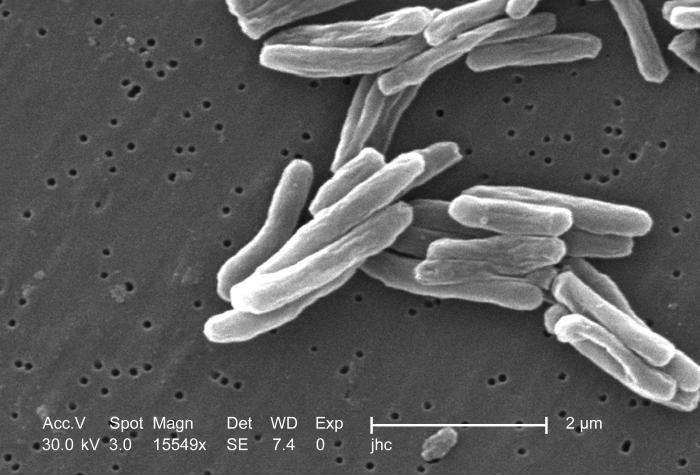 Prątki gruźlicy (Mycobacterium tuberculosis) pod mikroskopem elektronowym (domena publiczna).