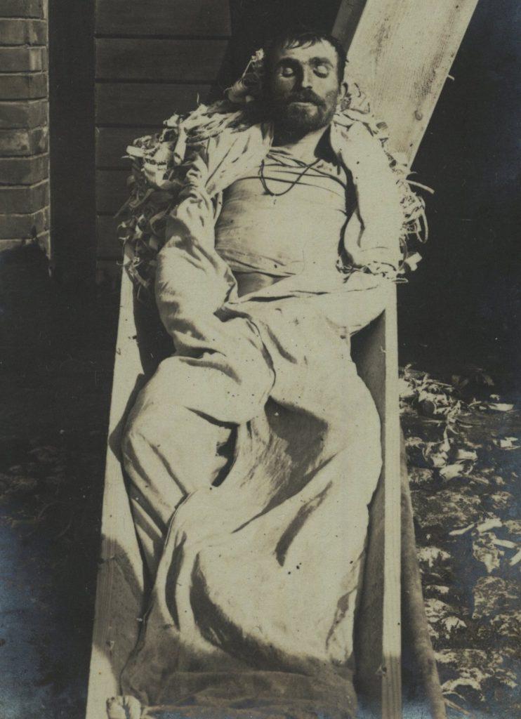 Rosyjki żołnierz zmarły na cholerę. Zdjęcie z okresu I wojny światowej (domena publiczna).