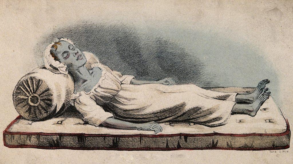 XIX-wieczny rysunek chorej na cholerę kobiety (domena publiczna).