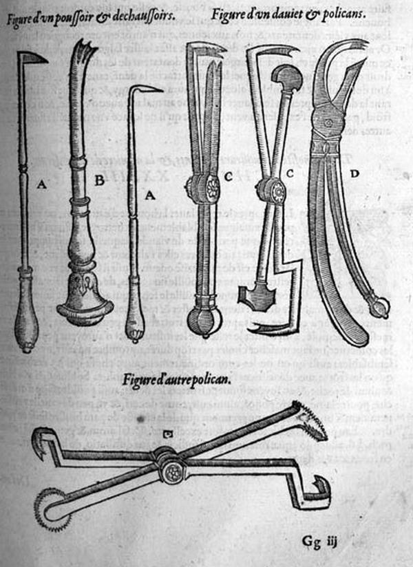 Narzędzi chirurgiczne Ambrożego Paré (domena publiczna).