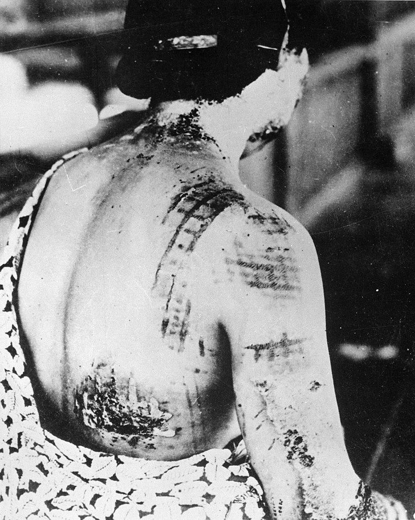 Ocalała z wybuchu kobieta, która kilka lat po eksplozji prezentuje blizny po oparzeniach jakich doznała 6 sierpnia 1945 roku (domena publiczna).