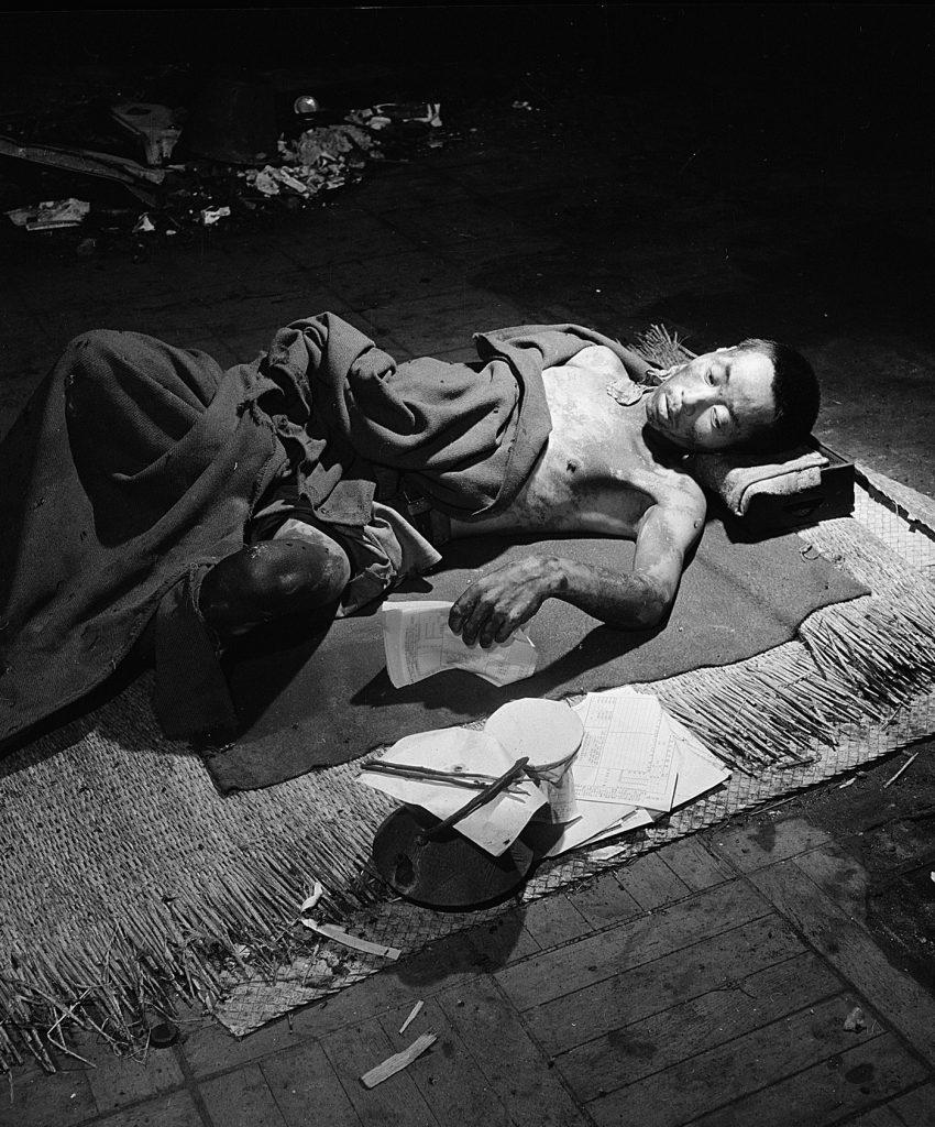 Ofiara wybuchu w Hiroszimie podczas leczenia (Wayne F. Miller domena publiczna).
